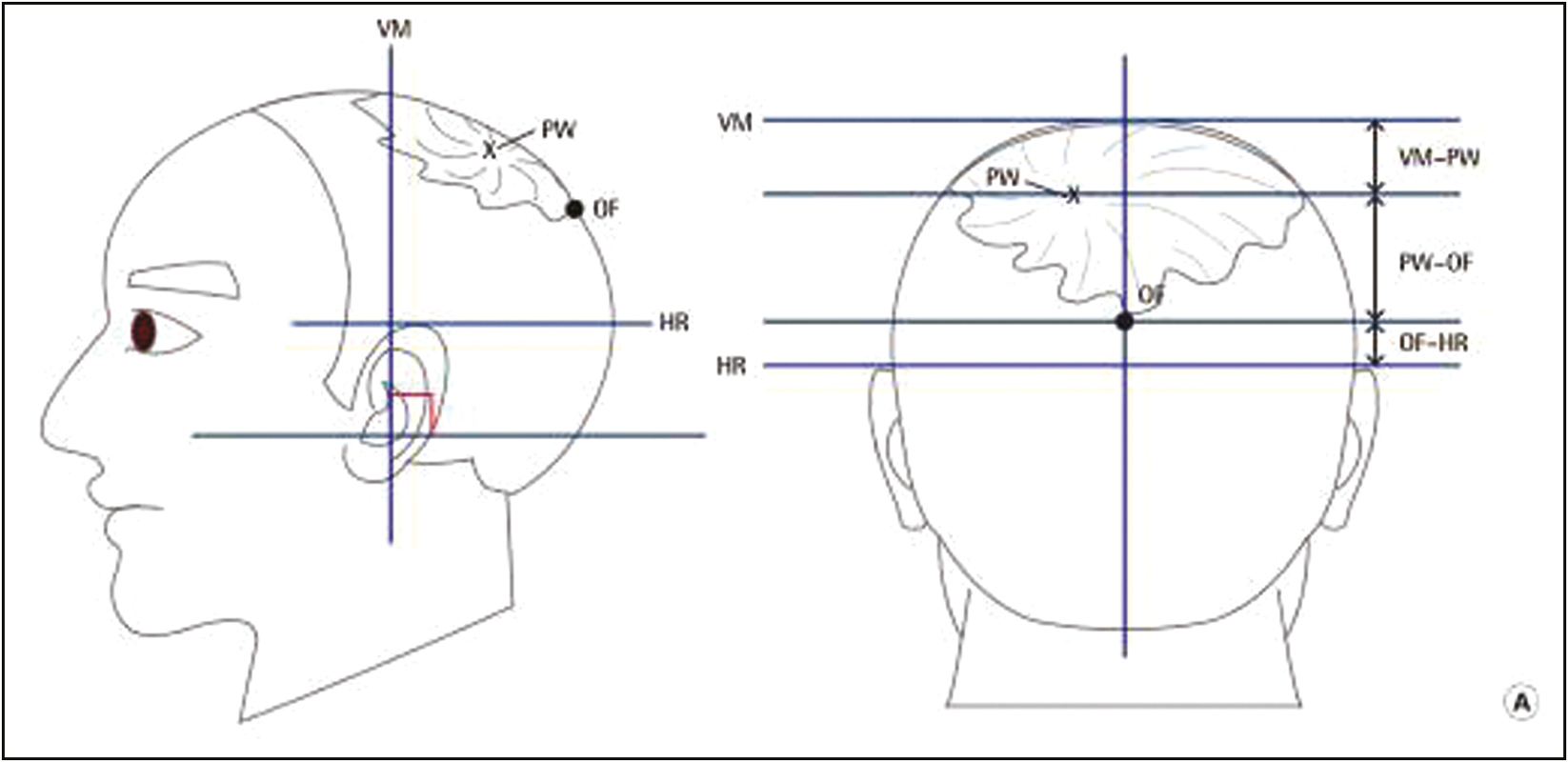 Figure 2: Landmarks for measurement of parietal whorl position