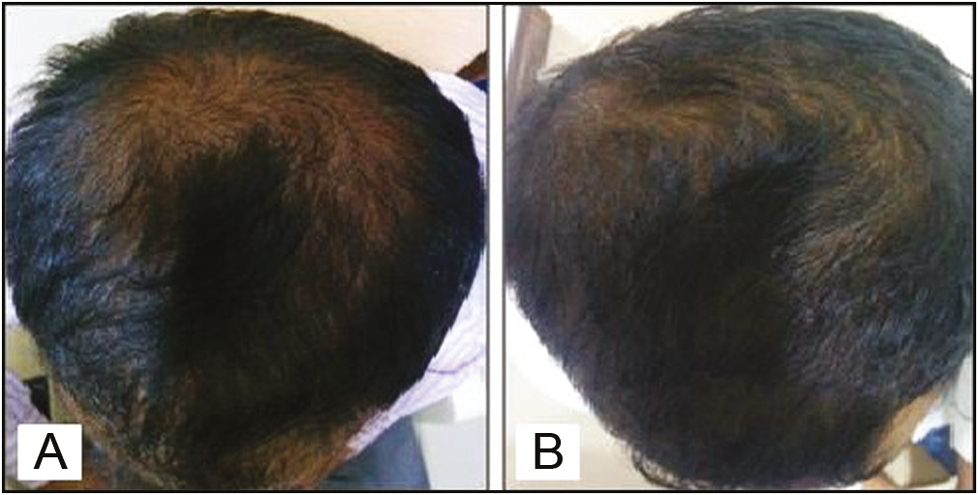 "Figure 3: Pretreatment (A) and posttreatment (B) comparison showing improvement in the hair volume in the ""minoxidil alone"" group"
