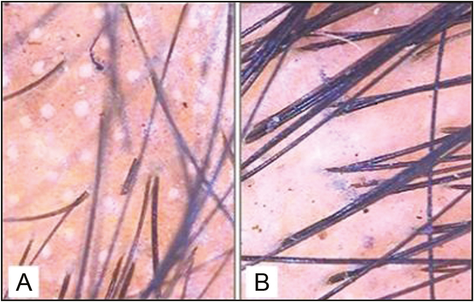 Figure 4: Pretreatment (A) and posttreatment (B) trichoscopic analysis in the combination treatment group revealed a significant increase in the hair count (original magnification ×10)