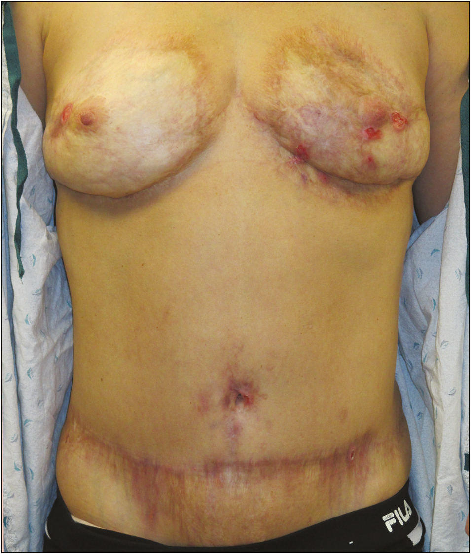 Figure 4: Recent photograph of same patient 10 years after her initial presentation