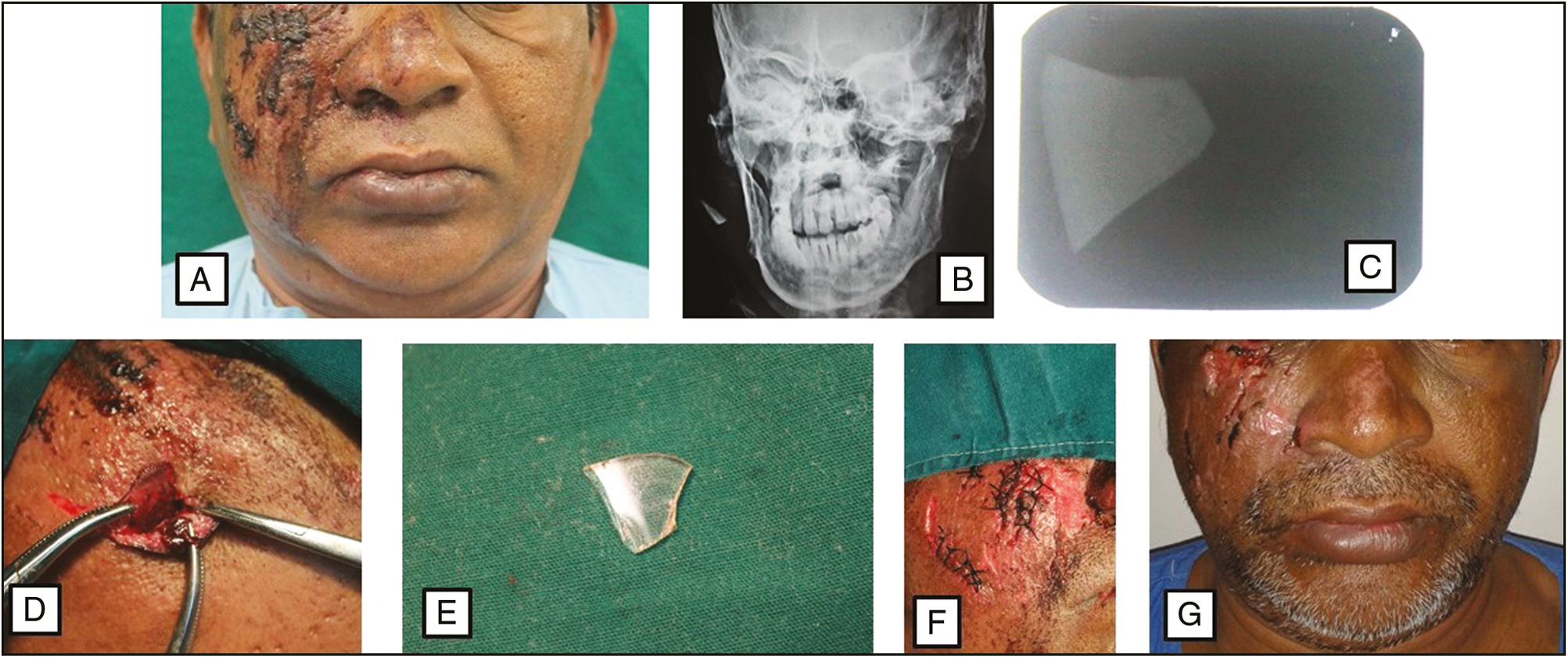 Figure 1: (A) Preoperative view. (B) PA mandible confirming presence of a radio-opaque object in the right ramus area of the mandible. (C) IOPA confirming presence of a radio-opaque object in the right ramus area of the mandible. (D) Retrieval of the embedded foreign body through the existing wound. (E) Foreign body which turned out to be broken glass piece. (F) Closure. (G) One week follow up