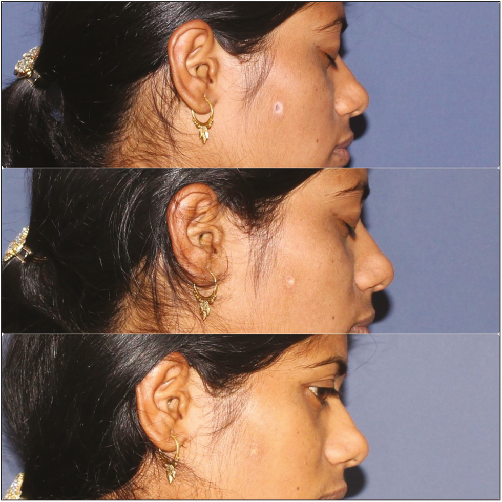 Figure 2: Clinical image of halo nevus on the face showing outstanding improvement after MEL treatment