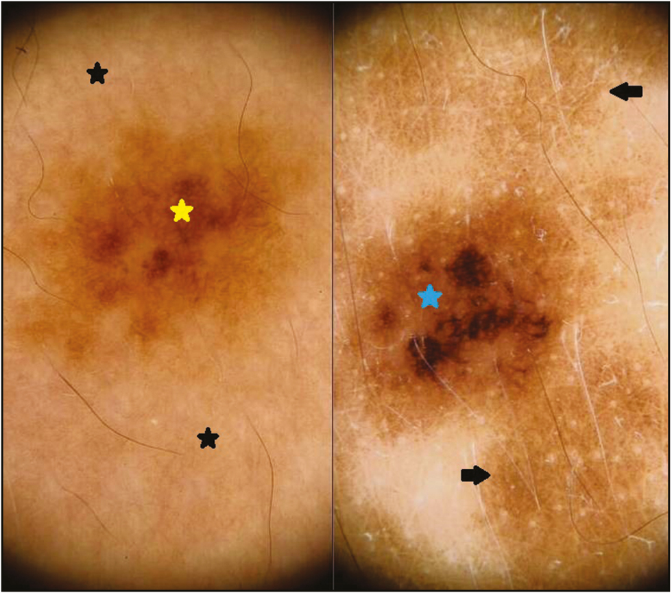 Figure 8: (A) Dermoscopy of halo nevus showing pigment network ( yellow star) in the center surrounded by diffuse structureless white areas (black stars) (left panel). (B) After treatment, faint pigment network (black arrows) is well appreciated in the white structureless area and also note the increased melanin amount in the pigment network (blue star) (right panel)