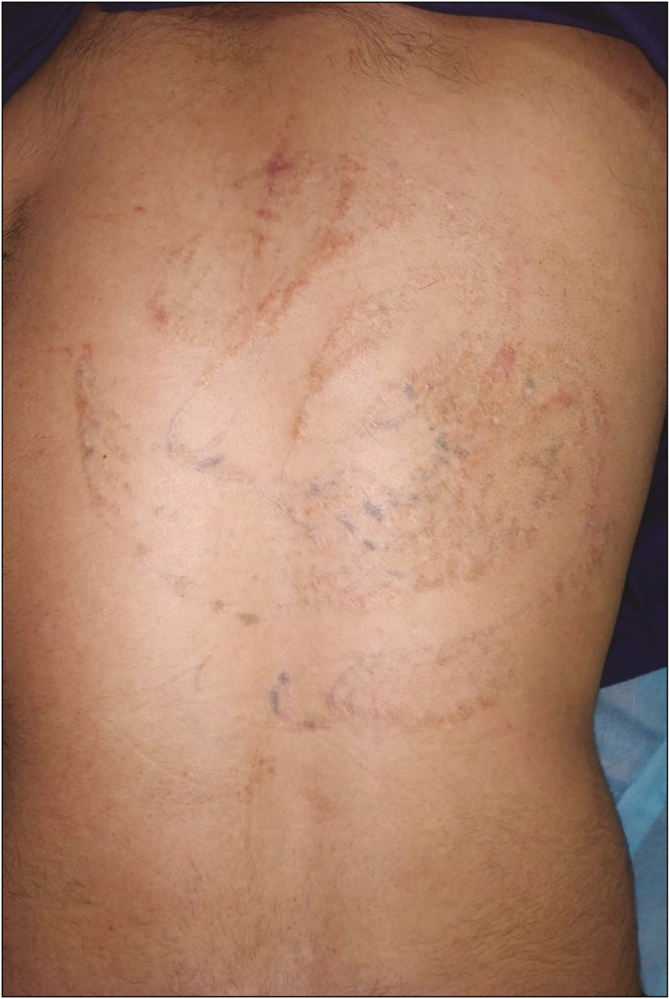 Mini Punch Skin Excision A Newer Novel Approach For Tattoo Removal