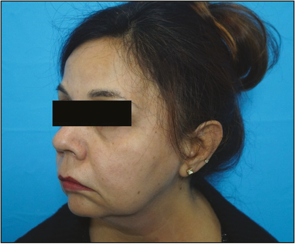 A case report on use of cog threads and dermal fillers for facial