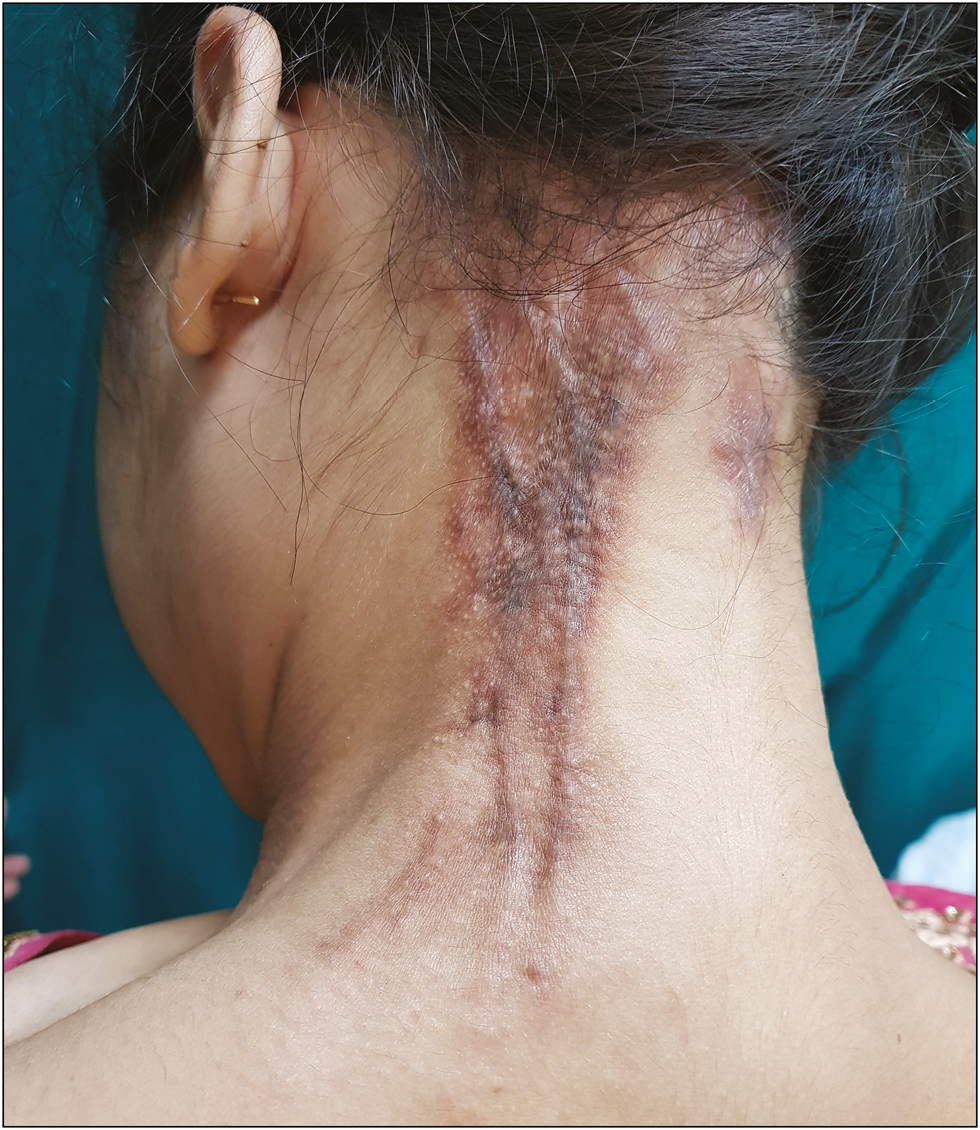 Figure 1: Two linear hyperpigmented indurated plaques over left side of back of neck with scarring alopecia. The plaque on the left side also shows linear thickened cord-like structures restricting the neck movement