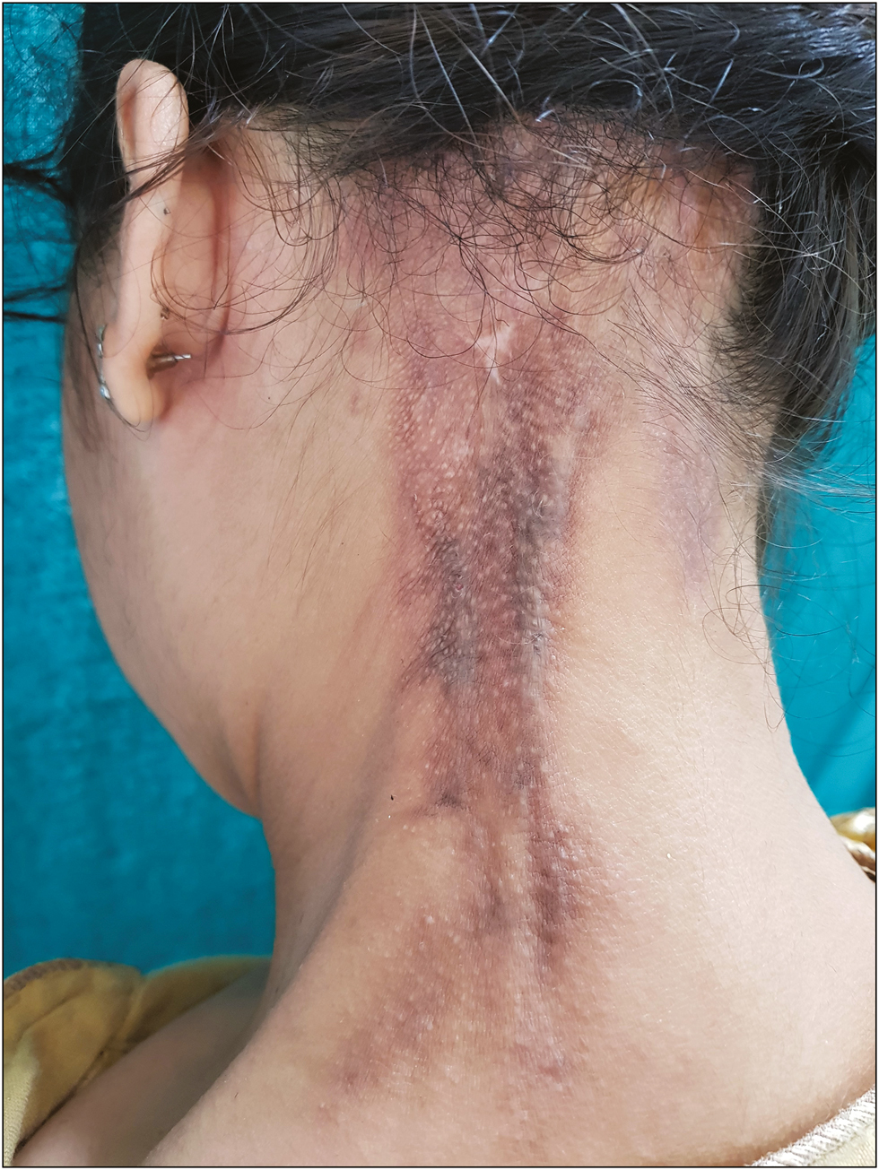 Figure 2: Lesion after 1 month of treatment showing softening of the plaque as well as the cords