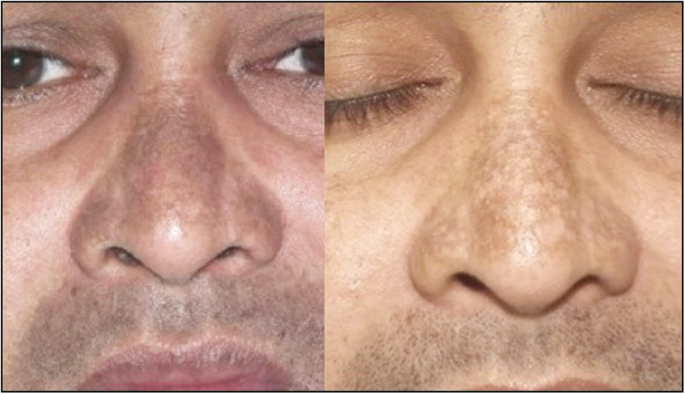 Figure 4: Mottled hypopigmentation due to toning after six sessions