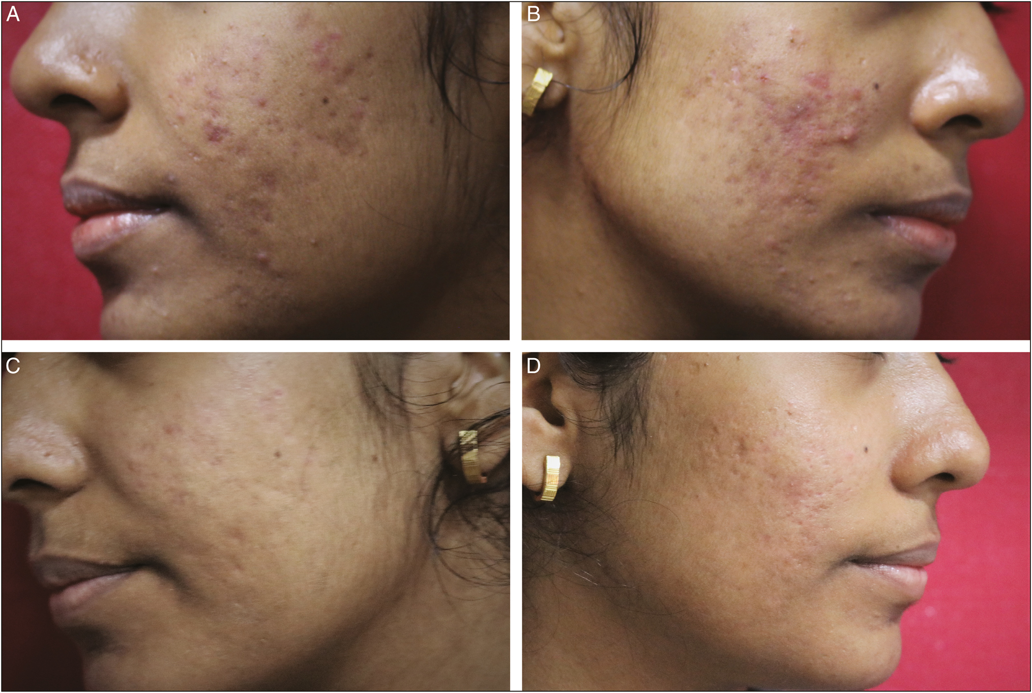 Figure 3: Erythematous acne scars (grade 3) with few active acne lesions. (A and B) before, (C and D) after peels and AFRCL