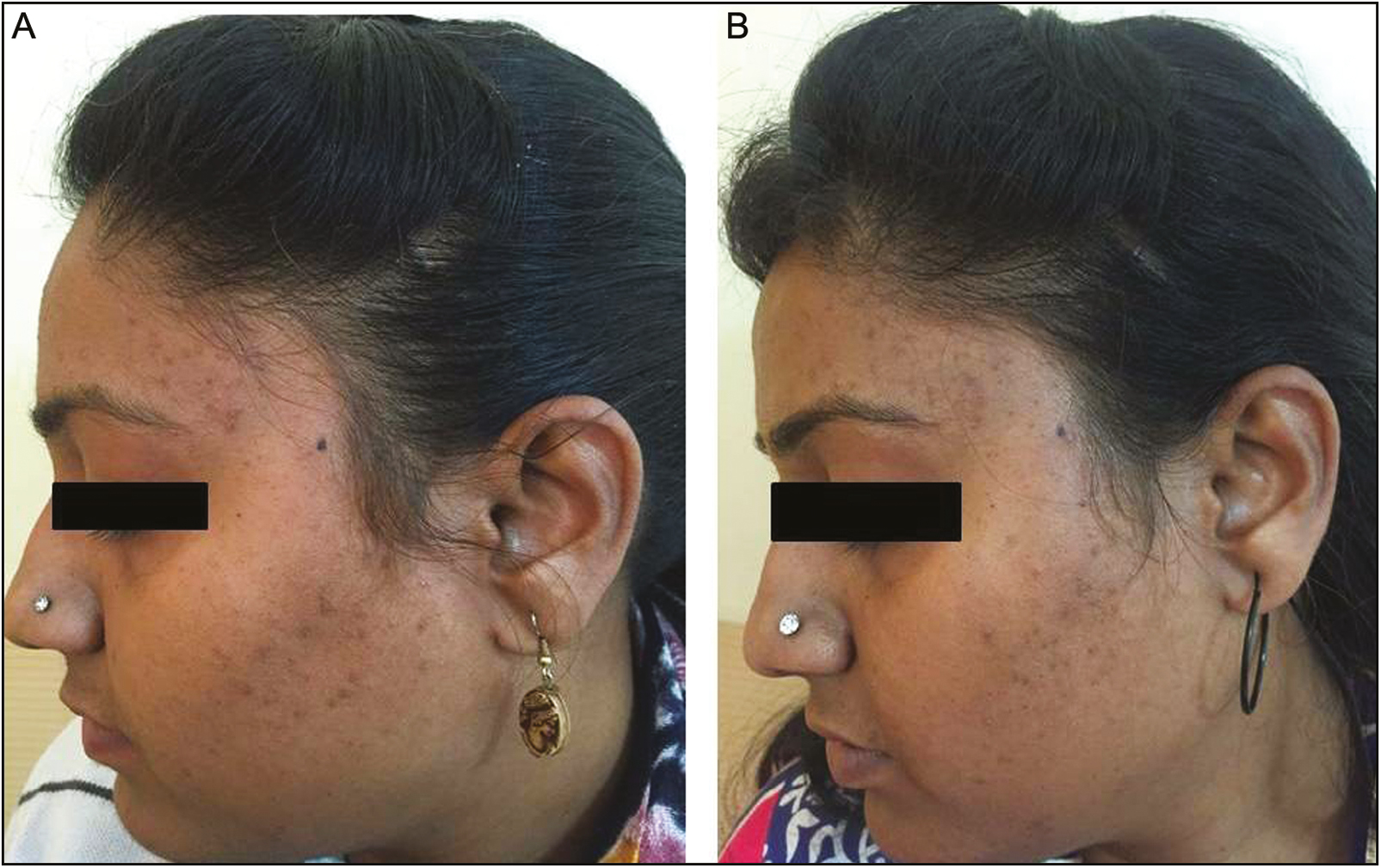 Figure 2: Images (A) and (B) show the baseline and 12-week results with 20% salicylic–10% mandelic acid peel combination