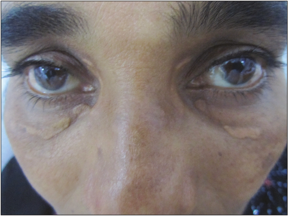 Figure 1: Xanthelasma palebrarum: before PDL treatment