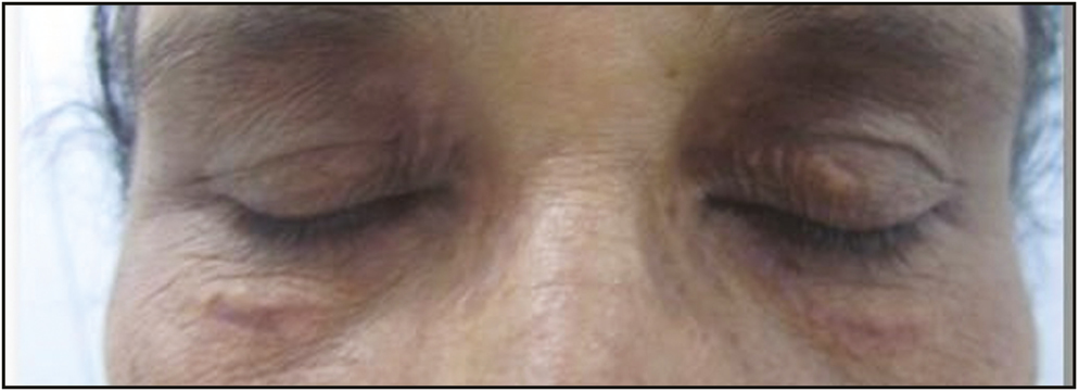 Figure 4: Xanthelasma palebrarum: after four sessions of PDL