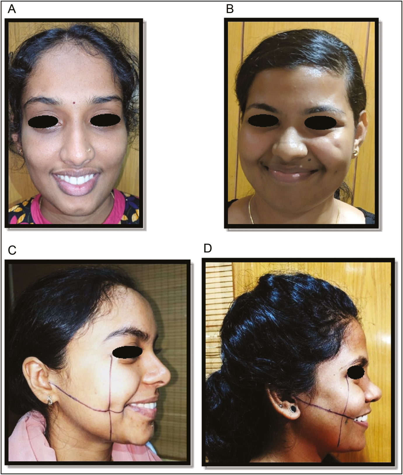Figure 2: Variations in dimple: (A) chin dimple, (B) malar dimple, (c) dimple coinciding with KBC point, and (D) dimple not coinciding with KBC point