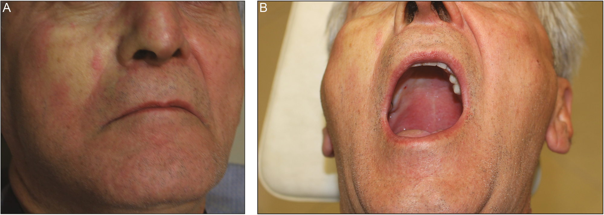 Figure 3: (A) Facial blanching and (B) palatal ischemia after maxillary nerve block via greater palatine canal
