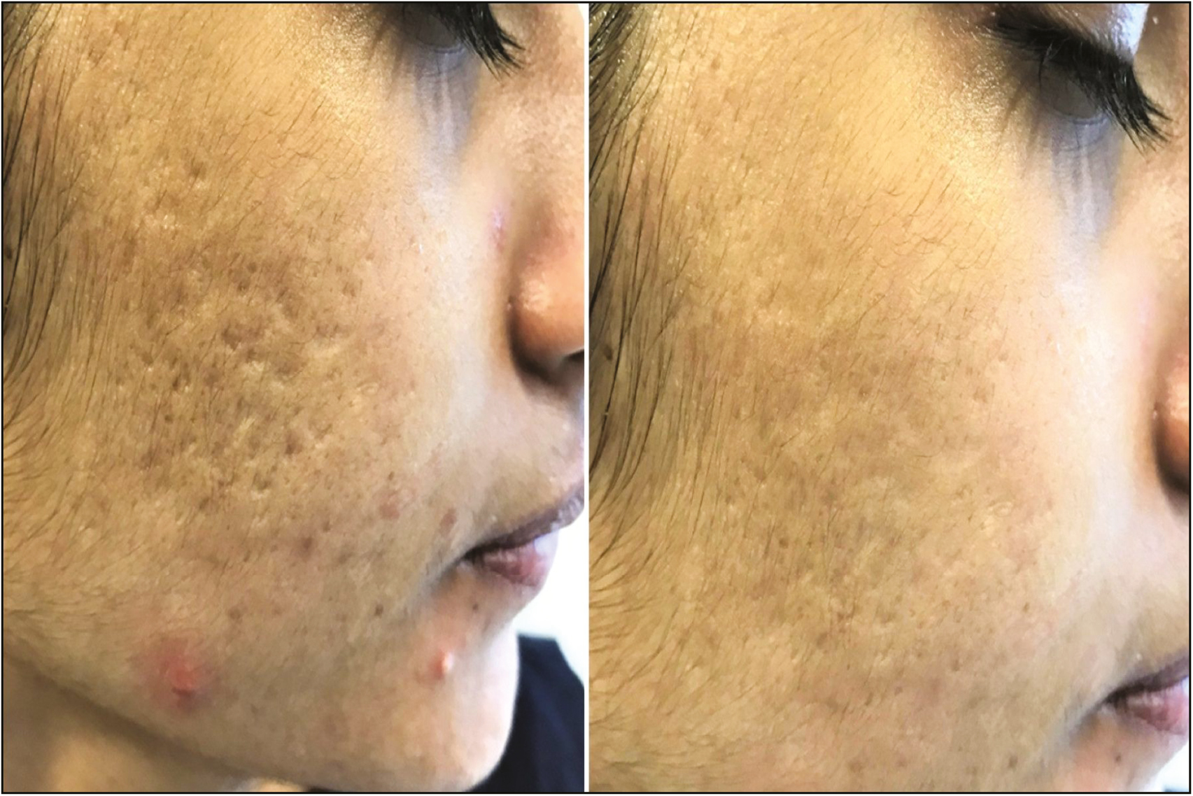 Evidence Based Surgical Management Of Post Acne Scarring In Skin Of Color Gupta A Kaur M Patra S Khunger N Gupta S J Cutan Aesthet Surg
