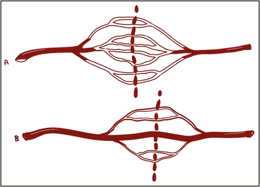 Figure 1: Choke vessels and true anastomoses connecting adjacent angiosomes. (A) Choke anastomoses between adjacent arteries (reduced vessel size). (B) True anastomoses between adjacent arteries (normal vessel size)