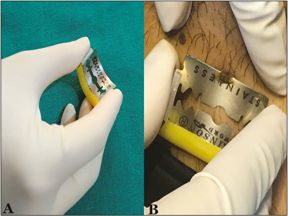 Figure 2: Shave biopsy instrument. (A) Better grip, control, and operator comfort. (B) Shave biopsy of seborrheic keratosis