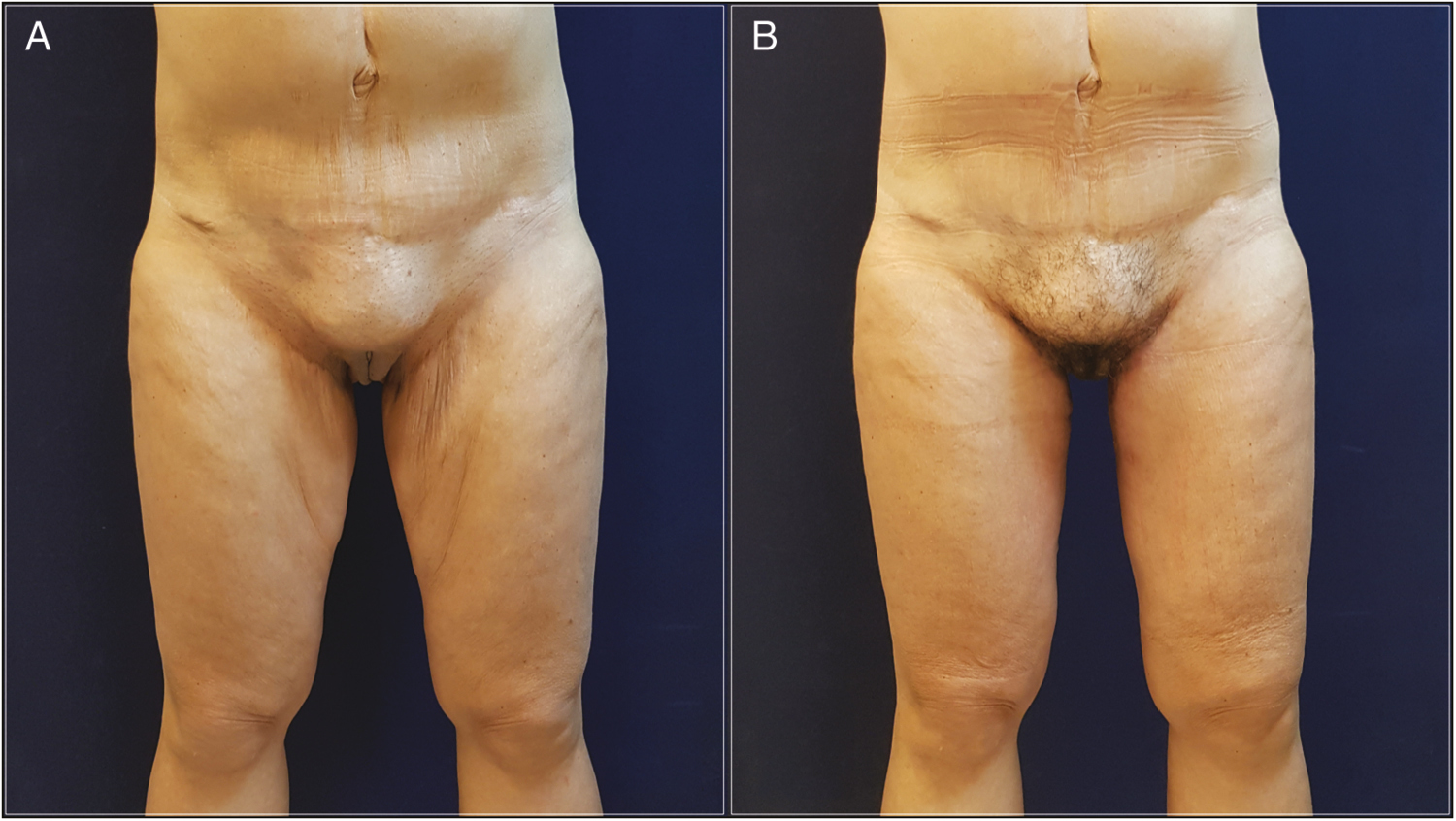 Figure 5: (A) Anterior and posterior view of this 60-year-old woman who underwent LAMeT after gastric bypass and weight loss of 43 kg. (B) Eight months postoperatively. Note the location and the quality of the scar