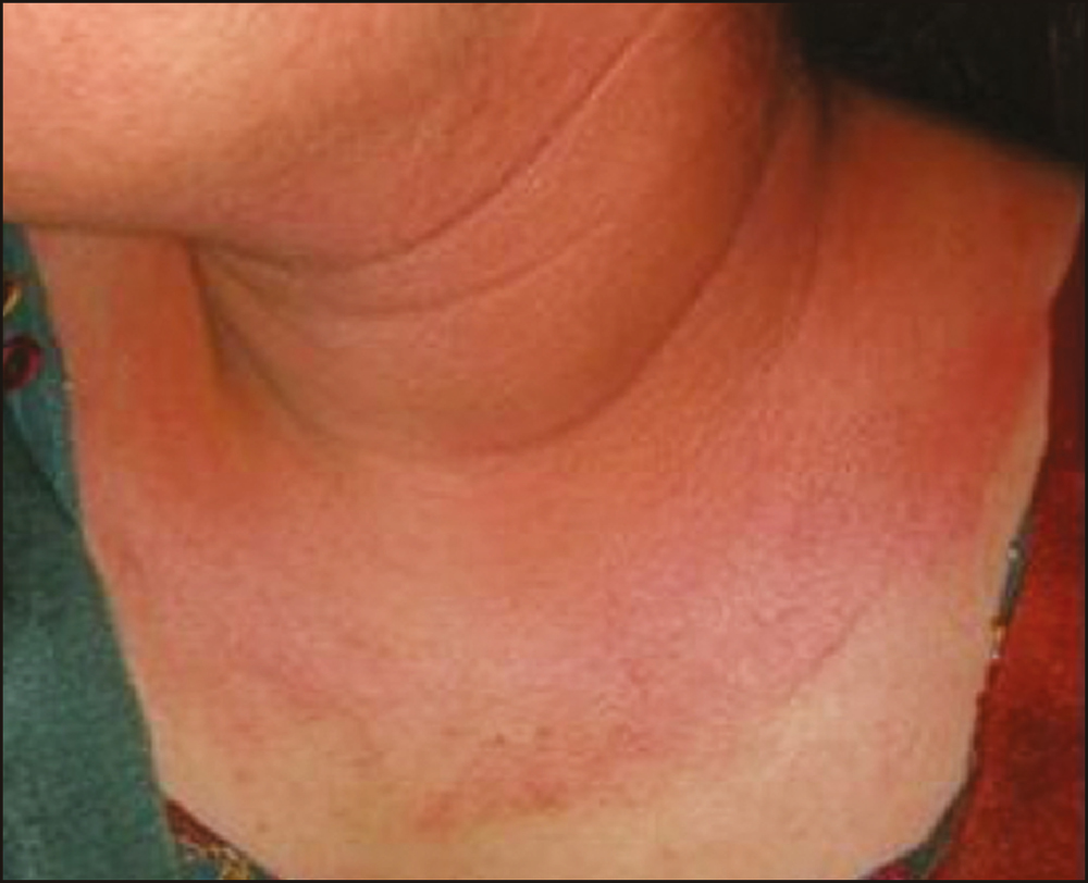 Figure 2: Contact dermatitis to postfacial cream given in parlor