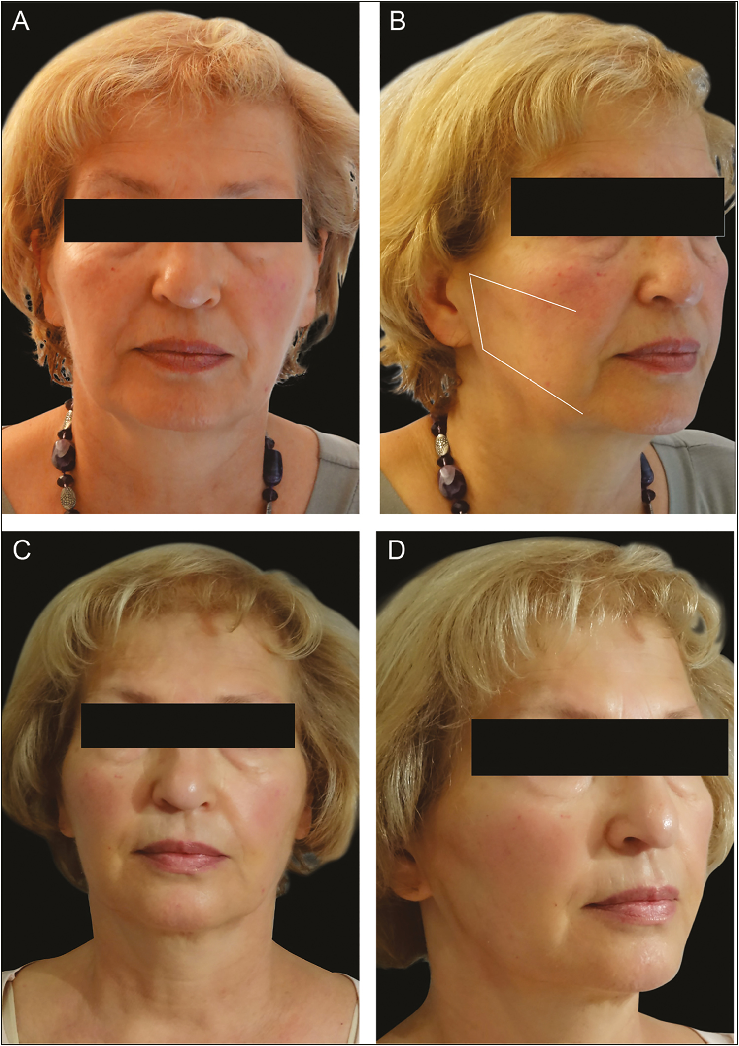 Figure 5: Before and after: The lateral reshaping (LR) technique