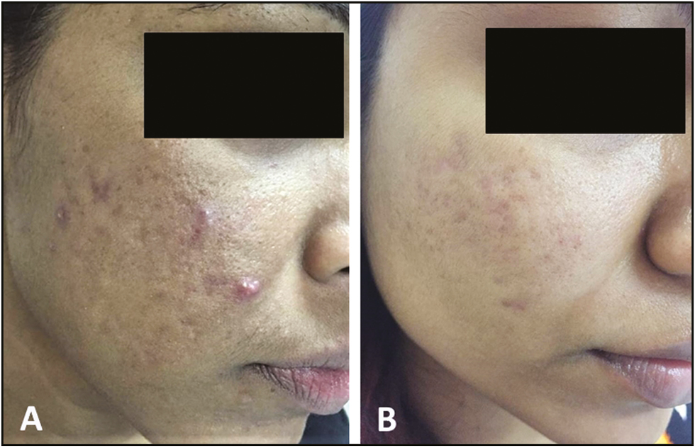 Figure 5: Pre- and posttreatment with four sessions (A and B) of microneedling combined with PRP