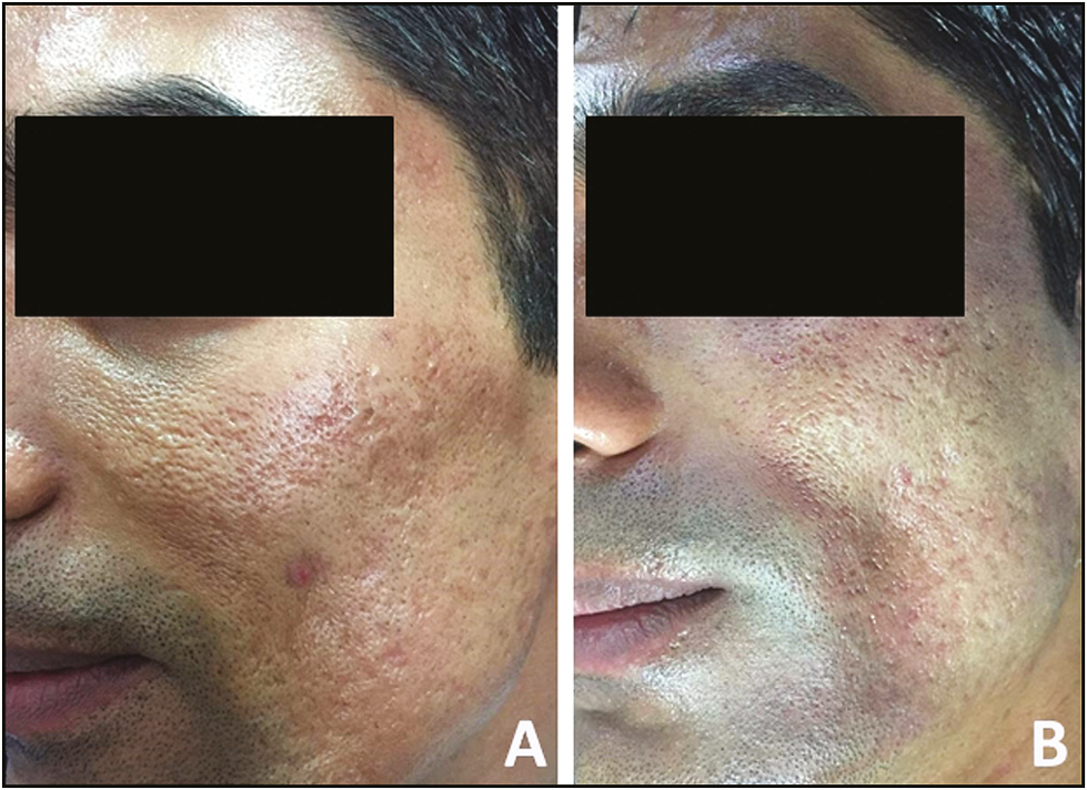 Figure 8: Pre- and posttreatment with four sessions (A and B) of microneedling