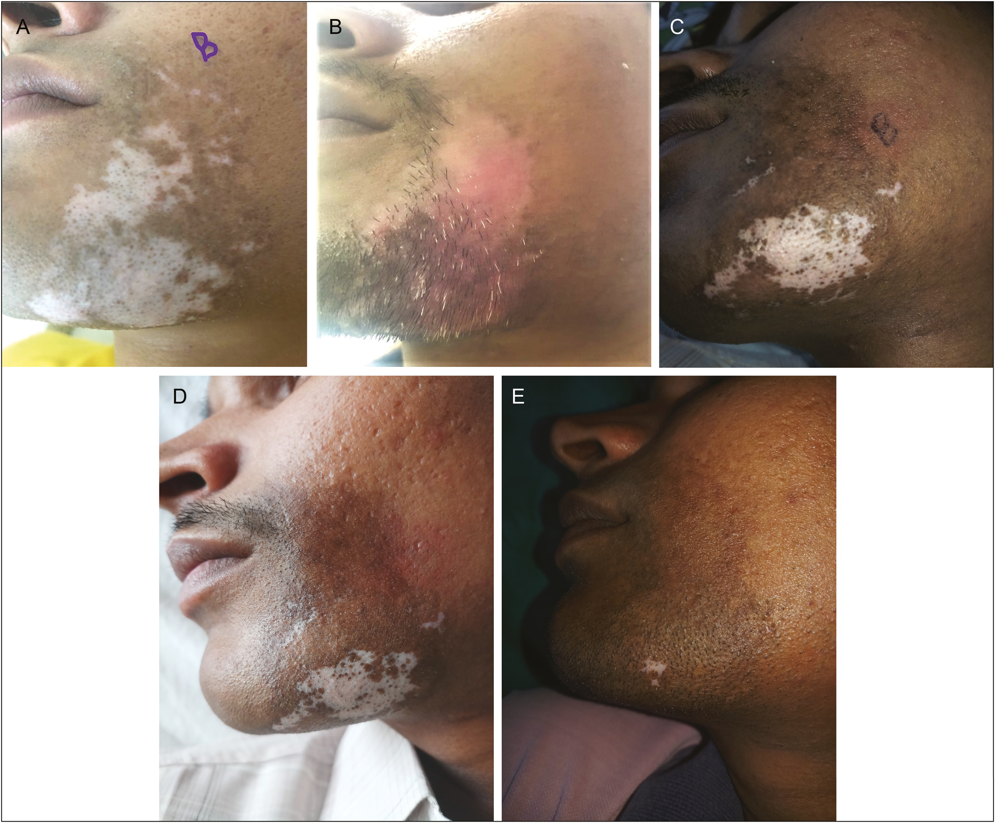 Figure 4: Comparison of repigmentation in a 25-year-old man with vitiligo patch on both cheeks showing excellent pigmentation (90%) after treatment with EC (A–E)